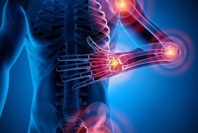 Polyarthrite rhumatoïde : les scientifiques traquent l'inflammation